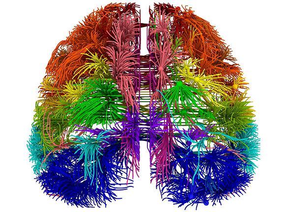web-3d-brain