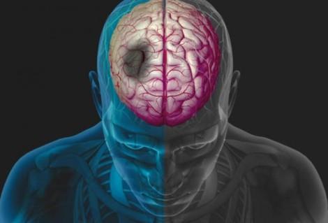 stroke simulation