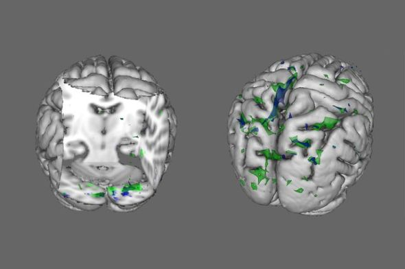 "People with anorexia (green areas) and BDD (blue areas) show less activity than healthy people in the brain regions that process ""global"" information when viewing houses (left) and faces (right). Image credit goes to:  Wei Li, UCLA"