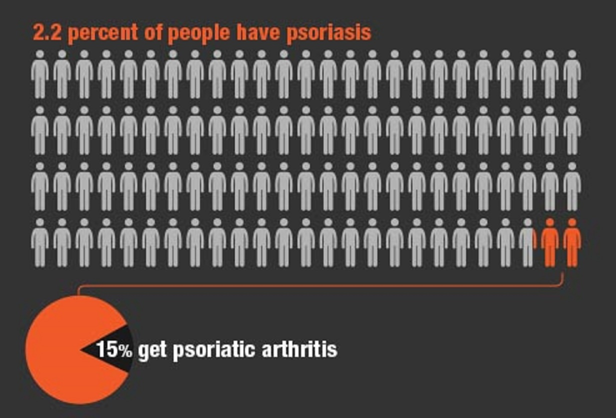 New treatments are changing the prospects for people with psoriasis according to Professor Griffiths 1