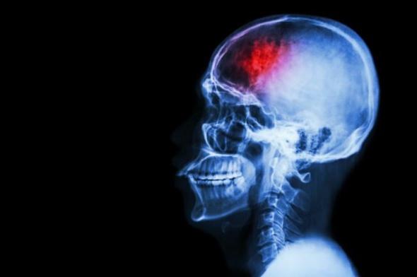 skull stroke