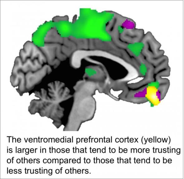 he ventromedial prefrontal cortex (yellow) is larger in those that tend to be more trusting of others compared to those that tend to be less trusting of others. Image credit goes to: Brian Haas/University of Georgia