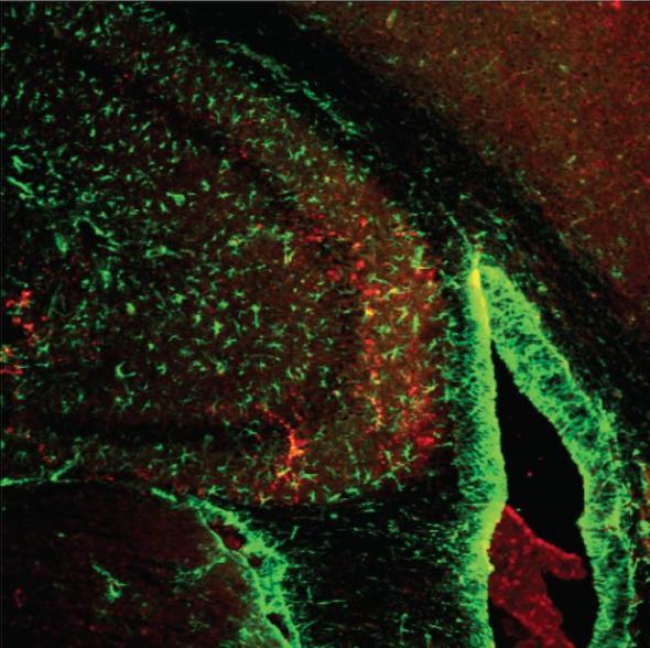 Estrogen-Related Receptor gamma protein