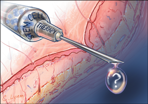 The pitfalls of stem cell therapy
