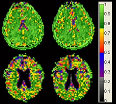 Brain cell density MRI