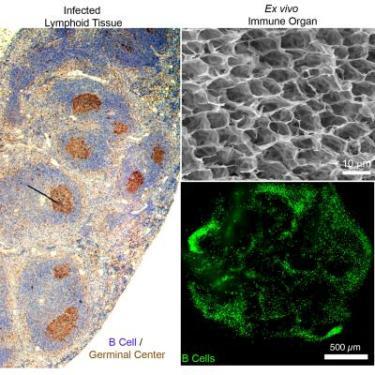 immune organoid