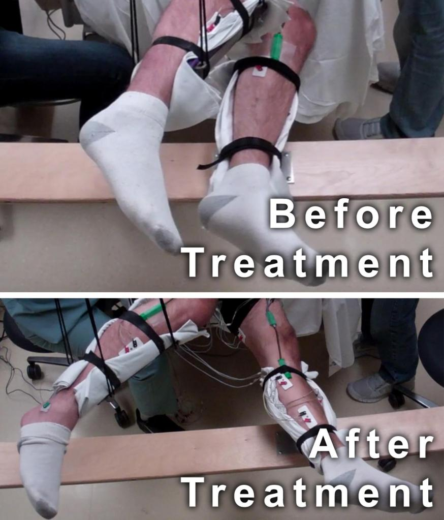 Paralyzed men move legs with new non-invasive spinal cord stimulation