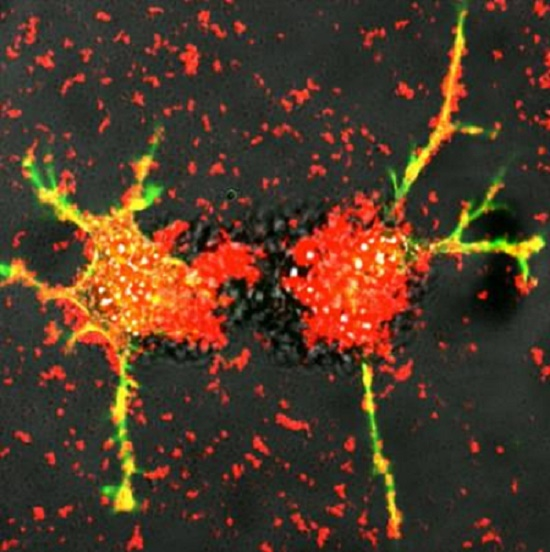 UNC smart cells teach neurons damaged by Parkinson's to heal themselves