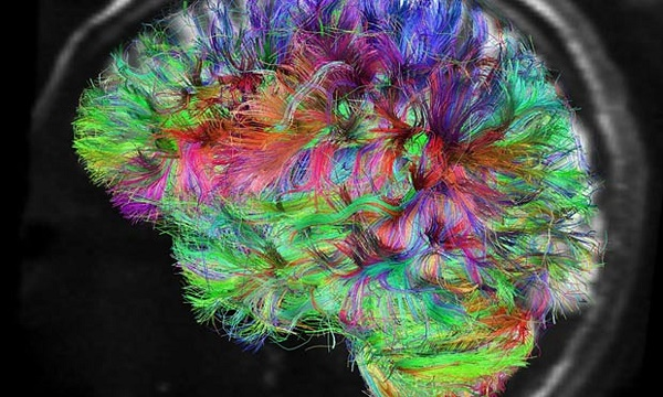 LSD changes consciousness by reorganizing human brain networks