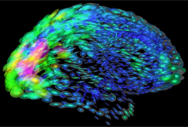 New theory linking brain activity to brain shape could throw light on human consciousness