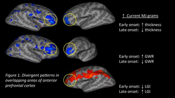 FMRI showing effects of marijuana and age