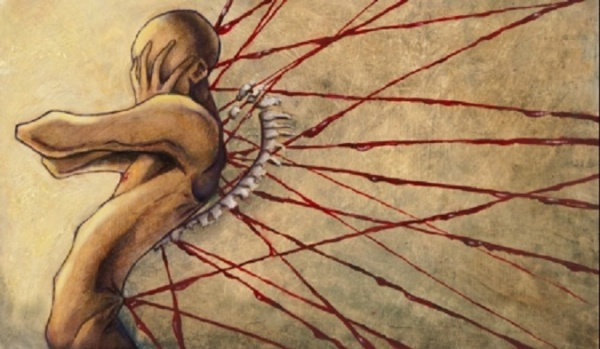 how to stop nerve pain