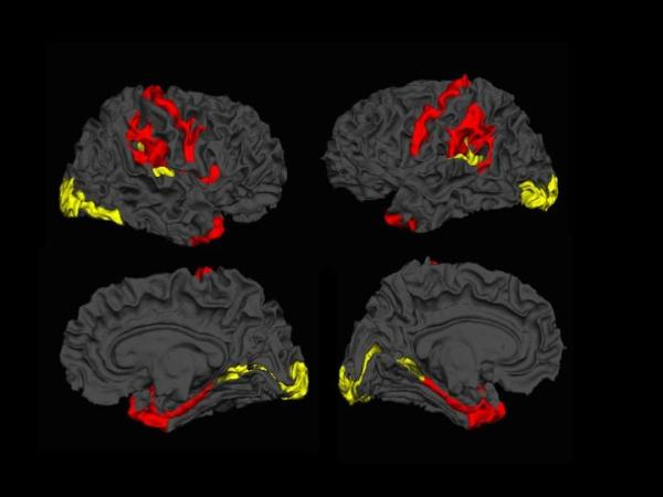 Cortical thickness - schizophrenia