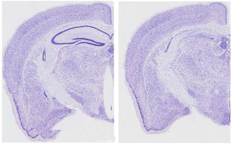 Sections of brains from normal (left) and tauopathy (right) mice. The dark purple lines in the left image represent the hippocampus, the area most responsible for learning and memory. This structure is almost completely absent in the right image. Image credit goes to: Ashe lab