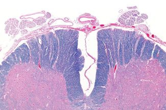 Spinal cord cross section with the anterior artery showing (top)