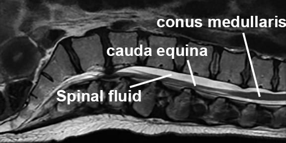 cauda equina MRI