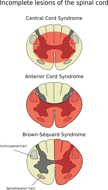 cord lesions