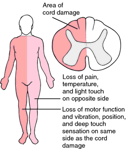 spinal damage
