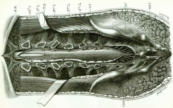 spinal dissection
