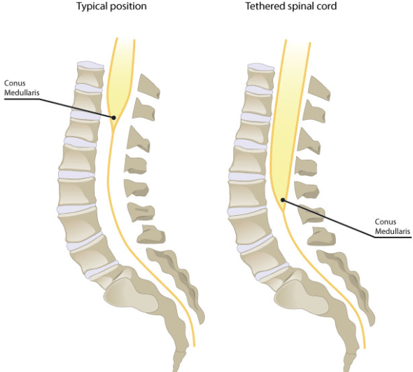 tethered spinal cord