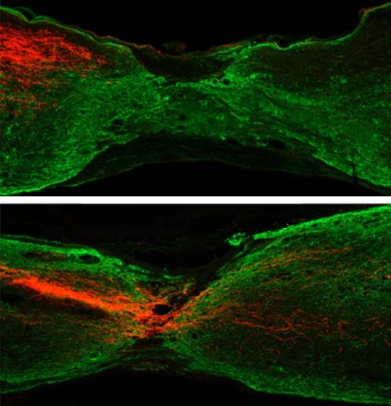 Spinal cord axon repair