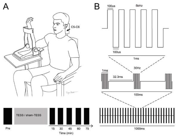Figure 1 of the paper showing the experimental set-up and the type of pulse used for stimulation