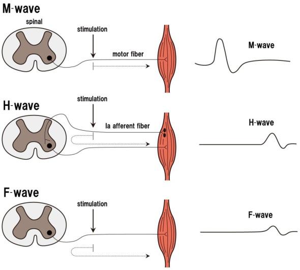 M-H-F Waves