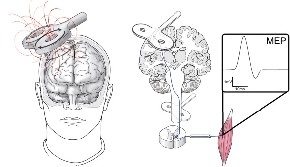 Transcutaneous magnetic stimulation of the brain