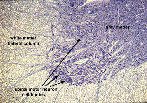 motor neuron histology