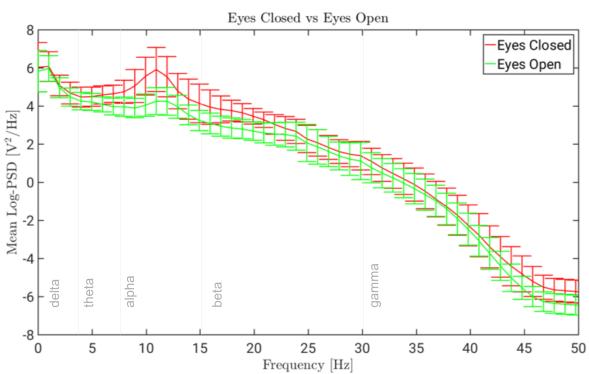 Power spectral density of EEG recording