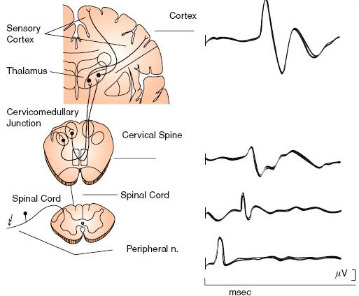 Somatosensory Evoked Potentials