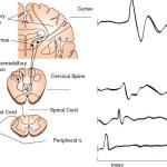 Somatosensory Evoked Potentials