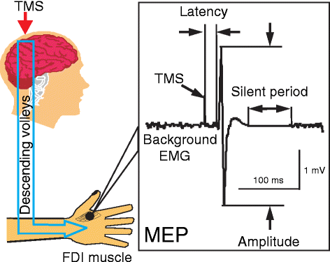 transcranial magnetic stimulation to induce a motor evoked potential