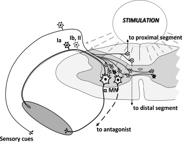 Spinal cord stimulation diagram