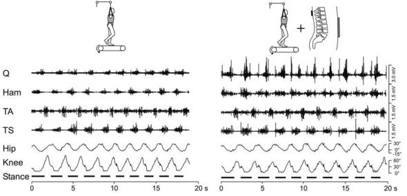 Person walking unaided (left) and in the presence of spinal stimulation (right)