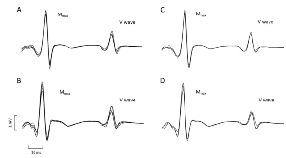 Evoked V-wave responses recorded in a representative participant during 5 repeated maximal voluntary contractions