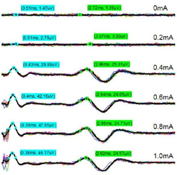 Example processed nerve responses during stimulation trials.