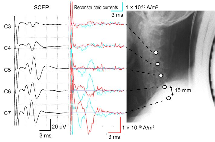 Reconstructed currents of MSG from the cervical spondylotic myelopathy subject. There are two different sets of plots, the furthest left shows the electrophysiological recording taken from the epidural space and the other set shows the reconstructed currents using MSG. They agree fairly well.